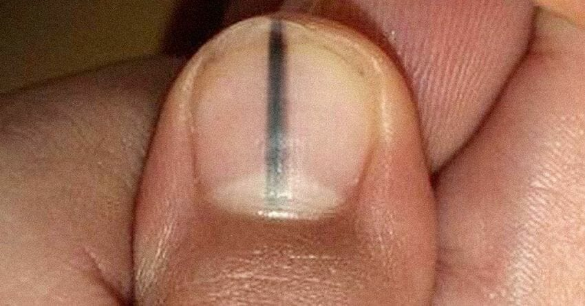 If you ever see a mark like this under your nail, call a doctor ...